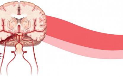 Aneurisma cerebral é conhecido por ser uma doença silenciosa