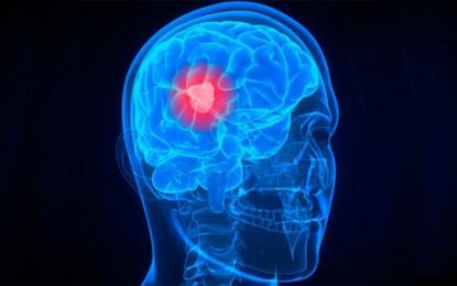 Gliobastoma é o tipo mais comum de tumor cerebral maligno