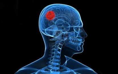 Tumor cerebral e formas de tratamento