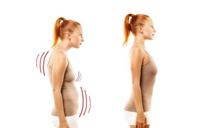 Má postura prejudica a aparência e o bem-estar