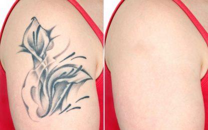 São Paulo recebe primeiro centro de remoção de tatuagem a laser da America Latina