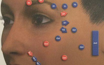 MD Codes para Lifting Facial