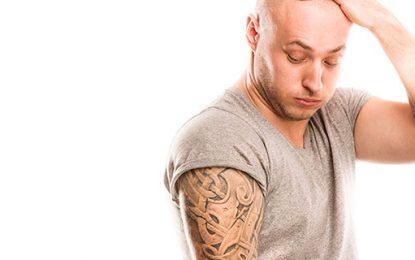 Tecnologia 4G para remoção de tatuagem