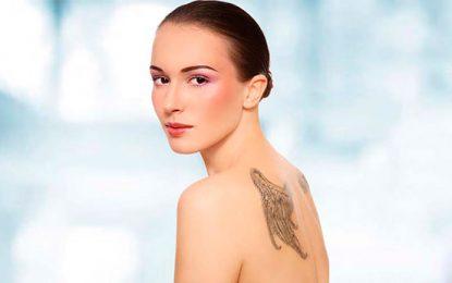 Fototermólise seletiva para remoção de tatuagem