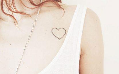 Rede de franquias para remoção de tatuagem na capital