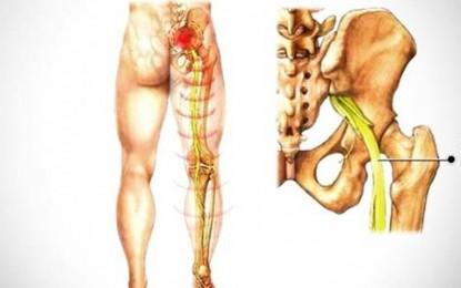 Saiba como evitar dores no nervo ciático